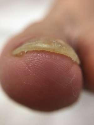 巻き爪矯正後「ツメフラ」