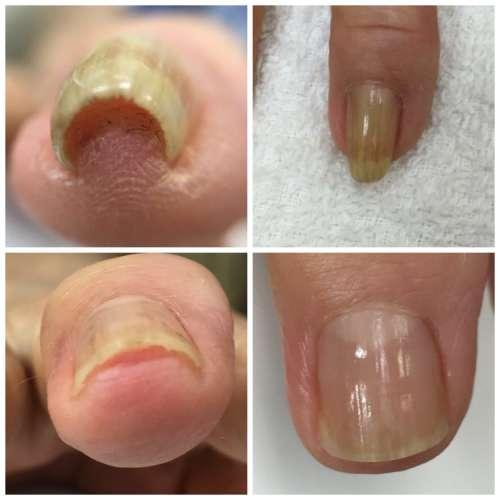 指の巻き爪矯正