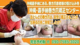 沖縄・嘉手納巻き爪矯正センター