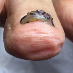 巻き爪矯正ツメフラ法