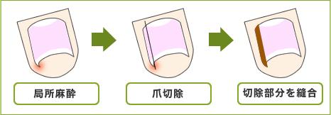 figure_onizuka
