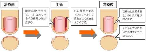 makidume_op (1)