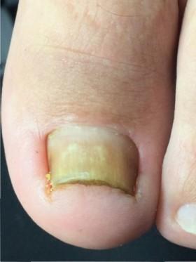 深爪 治療