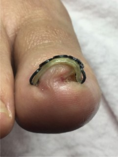 巻き爪矯正 巻き爪ロボ
