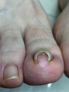 ツメフラ 巻き爪