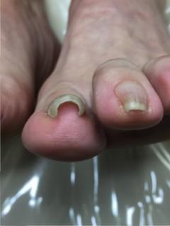 巻き爪治療