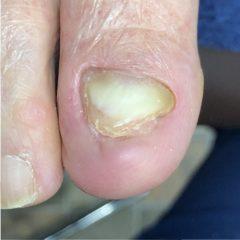 肥厚爪 処置