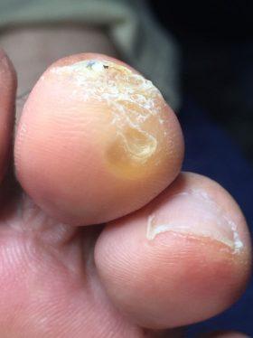 指先のウオノメ